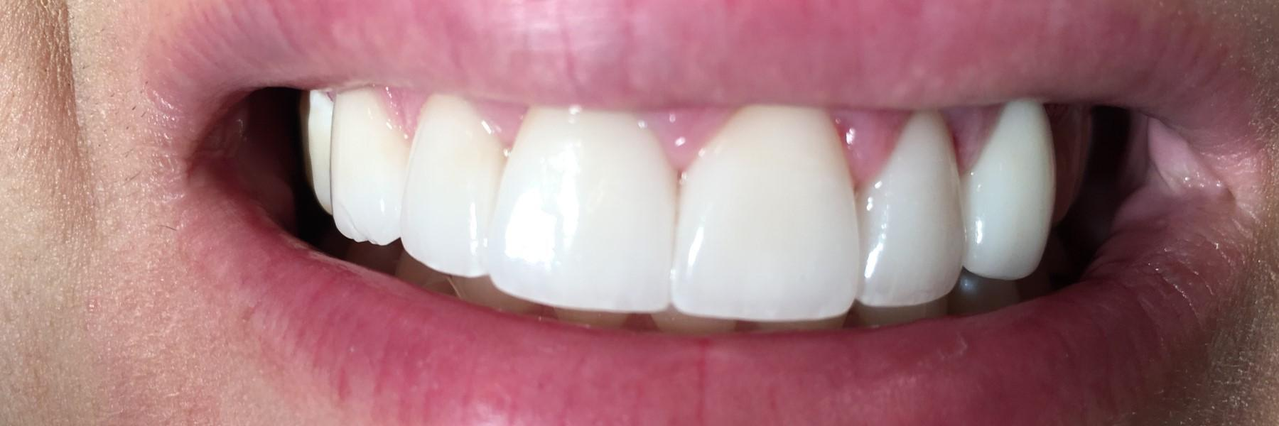 Bonding and Veneers | Dentist